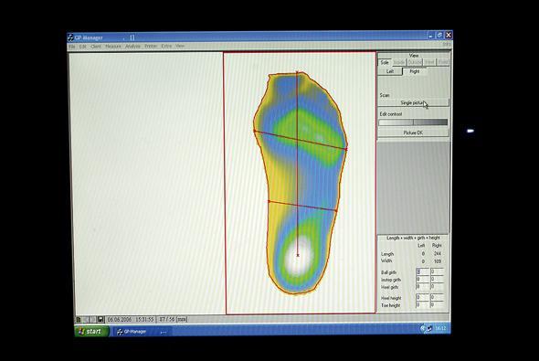 foot orthotics pressure gradient